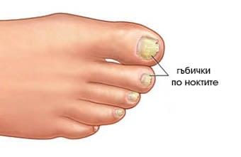 Онихомикоза - гъбички по ноктите