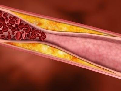 Холестеролът - Митове и Факти
