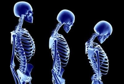 Научи повече за...  ...остеопорозата